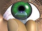 indepartarea unei lentile de contact